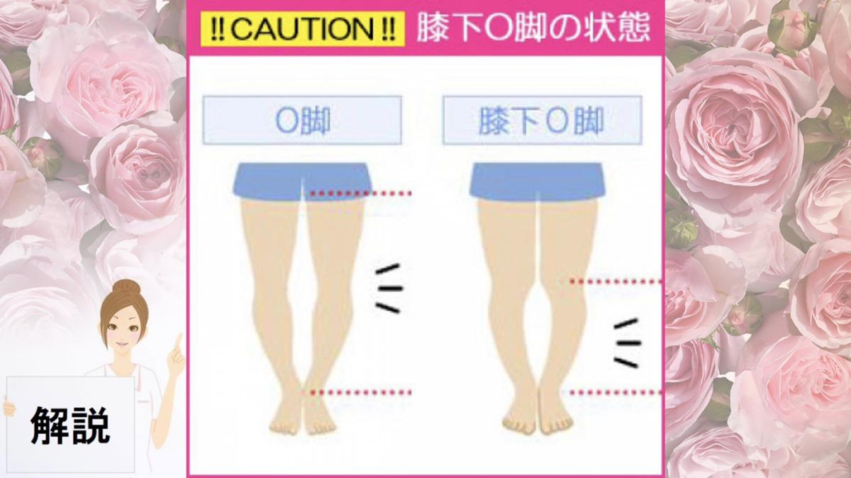 生活習慣が原因かも...すぐチェック!膝下O脚ではないですか?